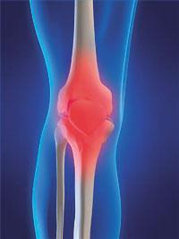 amely az osteochondrosis orvossága