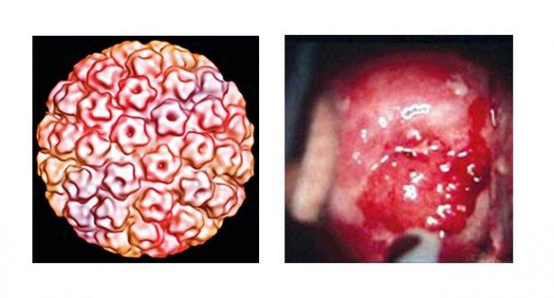 มะเร็งปากมดลูก